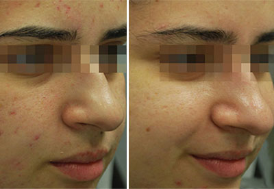 Before/After Patient Photo