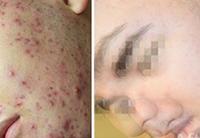 Галерея: результаты до и после лечения