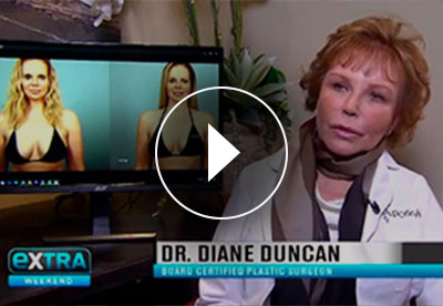 Dr. Duncan discusses scarless breast lift - BodyTite