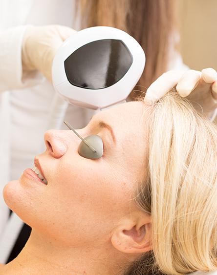 Skin Pigmentation Discoloration