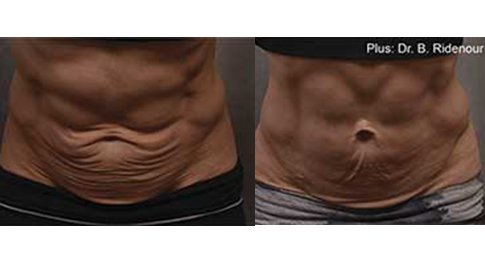 Non Invasive Body Remodeling