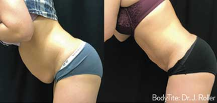Minimally Invasive Body Contouring