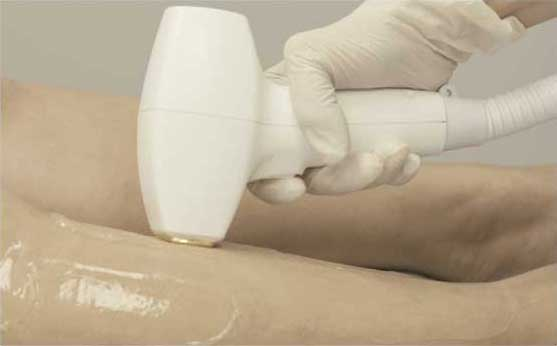 Effective Laser Hair Removal