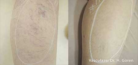Spider Veins And Vascular Lesions