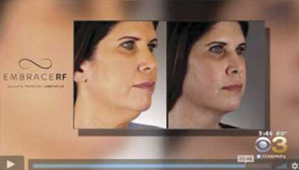 Minimally Invasive Neck Face Contouring