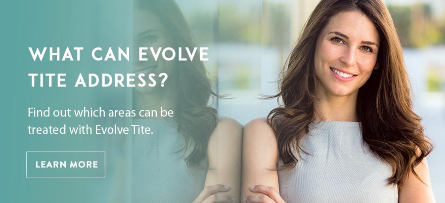 Evolve Tite