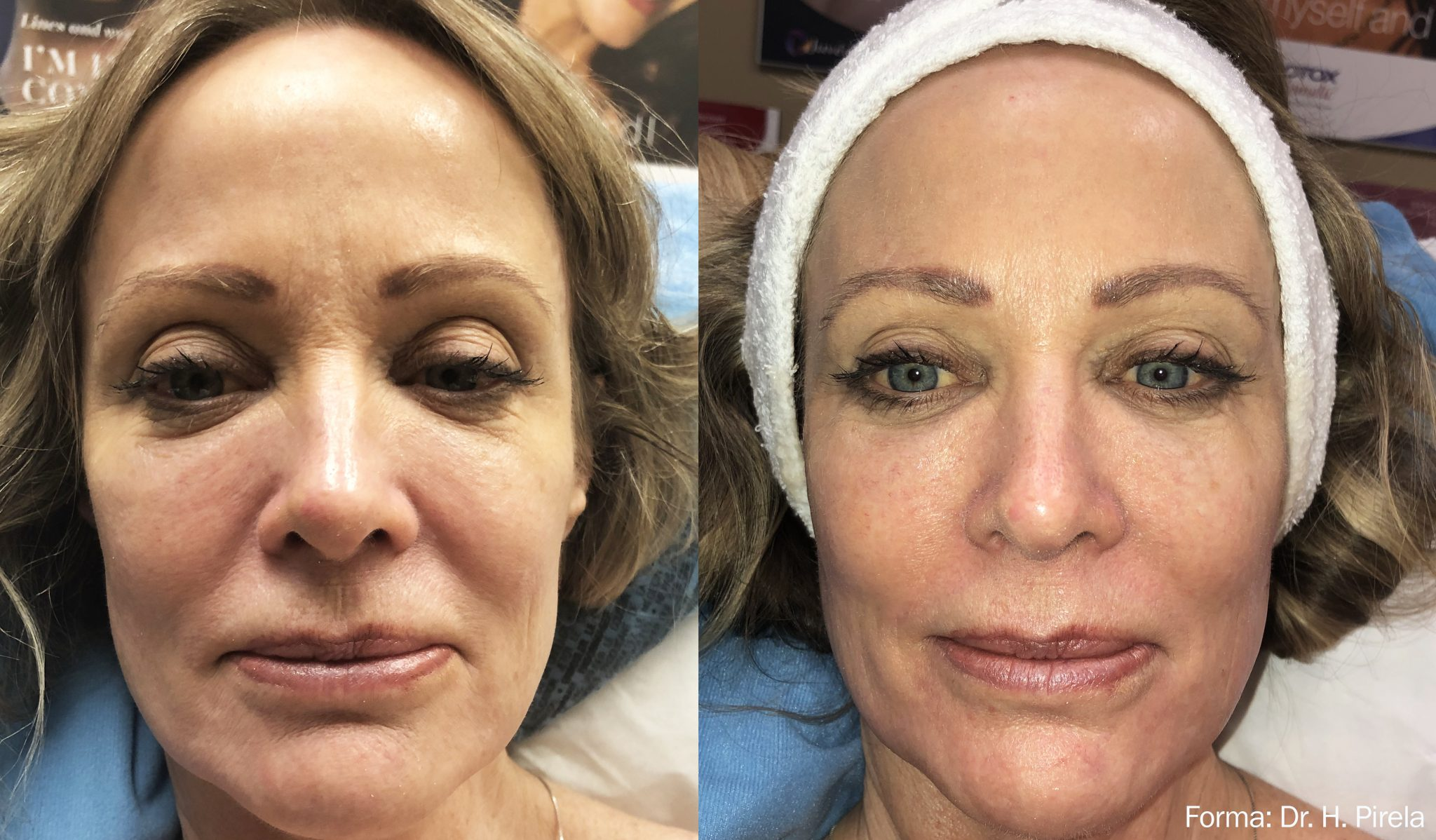 Non Invasive Neck Face Remodeling